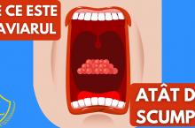 De ce este CAVIARUL cea mai scumpa mancare din lume? Cum se face CAVIARUL? – Lux Pedia